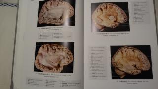 【医学生日记】局部解剖实验感想~~~最爱解剖啦~\(≧▽≦)/~
