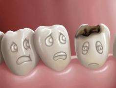 【科学60秒精听】Pre-Agricultural People Had Cavities Too